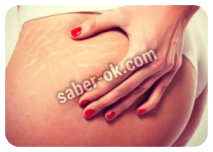 usar acido glicolico para las estrias blancas